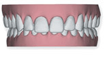 djupbett-bild